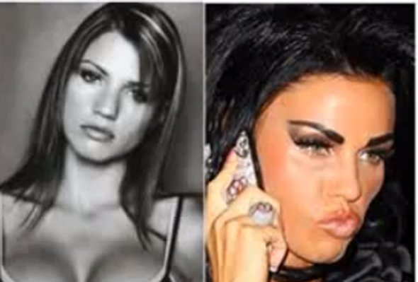 34-year-old-british-glamour-model-katie-price-has-gone-through-extensive-surgery-including-a-nose-job-and-lip-injections