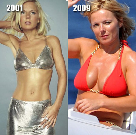 a97834_rsz_geri_halliwell_implants