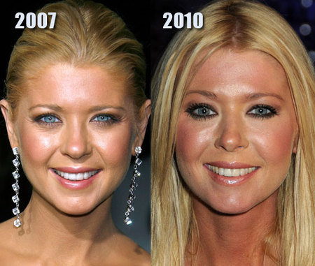 20 Best and Worst Plastic Surgery on Vimeo
