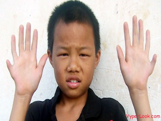 boy with 12 fingers