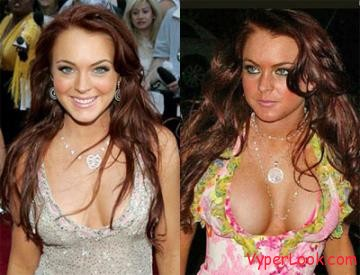 10 Worst Celebrity Plastic Surgery Mishaps - Woman's Day