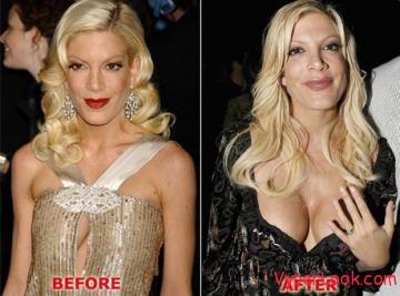 bp tori spelling 0 20 Best & Worst Celebrity Plastic Surgery Stories  Pictures Seen on www.VyperLook.com