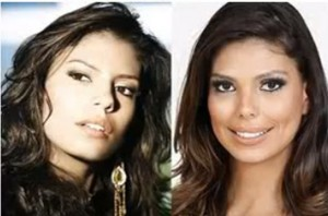 former-beauty-queen-and-television-presenter-bruna-felisberto-reportedly-had-a-nose-job-and-cheek-implants