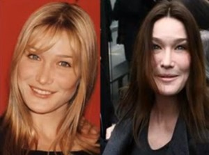20 Best and Worst Celebrity Plastic Surgery Stories (TV ...