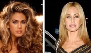 former-playboy-playmate-shauna-sands-lip-injections-have-totally-changed-the-appearance-of-her-face