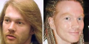 guns-n-roses-50-year-old-frontman-axl-rose-reportedly-got-cheek-implants-and-a-facelift
