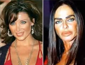 20 Best and Worst Celebrity Plastic Surgery Stories Part 1 ...