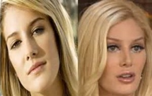 reality-star-heidi-montag-25-had-10-procedures-in-one-day-including-a-facelift-and-nose-job-she-now-says-she-regrets-the-procedures