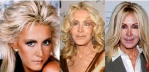 soap-opera-actress-joan-van-ark-best-known-from-dallas-and-knots-landing-shocked-attendees-of-a-charity-event-she-attended-looking-completely-different