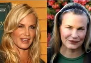 celebrity plastic surgery stories? | Yahoo Answers