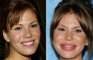 television-actress-nikki-cox-was-reported-to-undergo-cheek-and-lip-implants-at-just-34-years-old