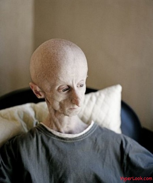 The Man with Alien Face 2 Worlds Oldest Survivor of Progeria Pictures Seen on www.VyperLook.com