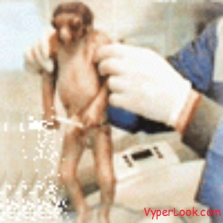 Woman Gives Birth To Monkey Like Baby2