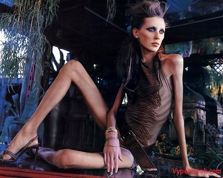 top thinnest female models of the world thumb Worlds Most Horrible Skinny Models Pictures Seen on www.VyperLook.com
