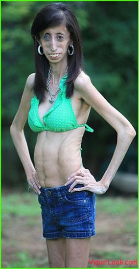 anorexic person in world. The Person Who Must Eat Every
