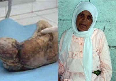 Zahra Aboutalib 2 Shocking Story Of A Woman Who Gave Birth To A Mummy Pictures Seen on www.VyperLook.com