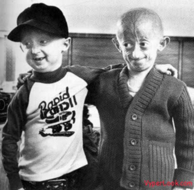 progeria 2 Weirdest Diseases In The World Pictures Seen on www.VyperLook.com