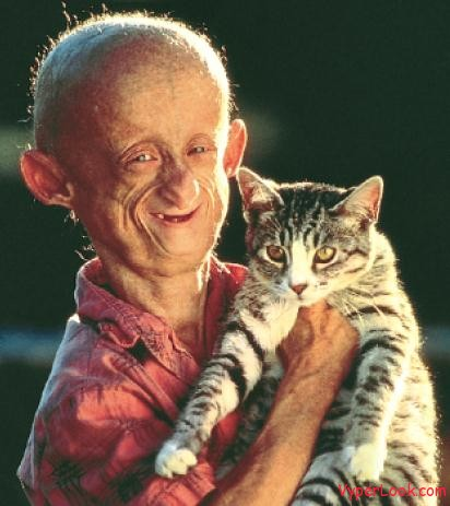 progeria Weirdest Diseases In The World Pictures Seen on www.VyperLook.com