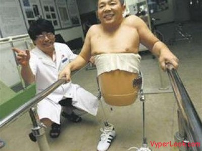 """""""Half-man"""" Peng Shuilin The Amazing Story Of A Man With ... - photo#9"""