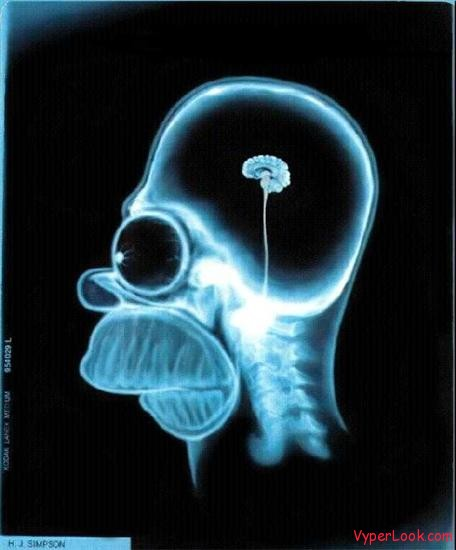 homer simpsons brain
