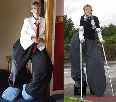 Mandy-Sellar-legs 1
