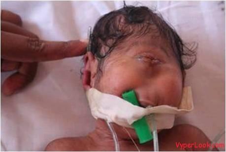 strange-baby-born with one eye 2