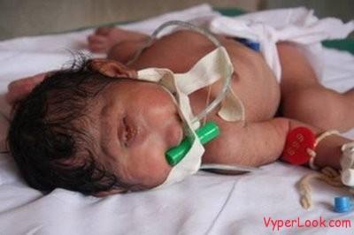 strange-baby-born with one eye