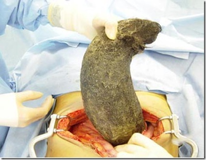 giant hairball in stomach 2 Most Bizarre Foreign Objects Found In Human Bodies Pictures Seen on www.VyperLook.com