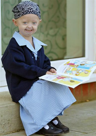 Hayley Okines progeria 1
