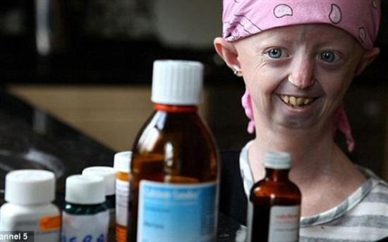 Hayley Okines progeria 2