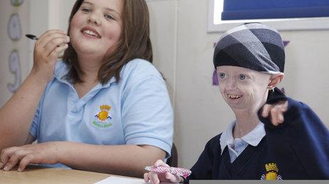 Hayley Okines progeria 3