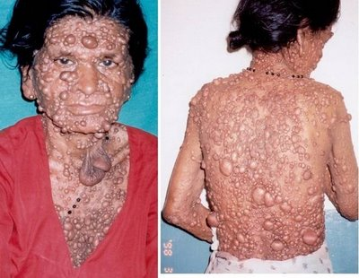 neurofibromatosis patient 2 Horrible Skin Disease   Bubble Man Mohammad Umar Pictures Seen on www.VyperLook.com