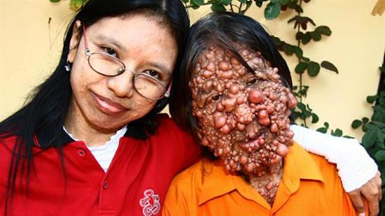 neurofibromatosis patient Horrible Skin Disease   Bubble Man Mohammad Umar Pictures Seen on www.VyperLook.com