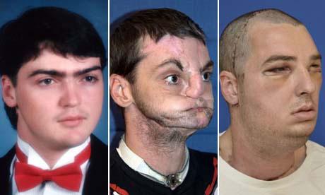 ازالة ندوب الوجه قبل و بعد