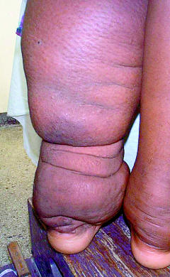 Elephantiasis 4 Bizarre Disease: Elephantiasis Turning People To Elephants Pictures Seen on www.VyperLook.com