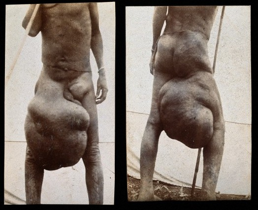 Elephantiasis 5 Bizarre Disease: Elephantiasis Turning People To Elephants Pictures Seen on www.VyperLook.com