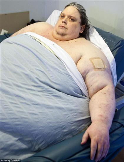 Keith Martin fattest man 2012 2