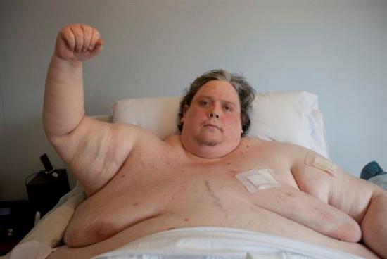 Keith Martin fattest man 2012