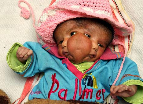 Lali Singh two faced baby 1 Strangest Babies Ever Born Pictures Seen on www.VyperLook.com