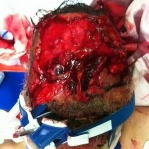 man bitten by cannibal on miami highway Extreme Autocannibalism And Human Cannibalism Pictures Seen on www.VyperLook.com