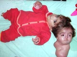 two headed baby Strangest Babies Ever Born Pictures Seen on www.VyperLook.com