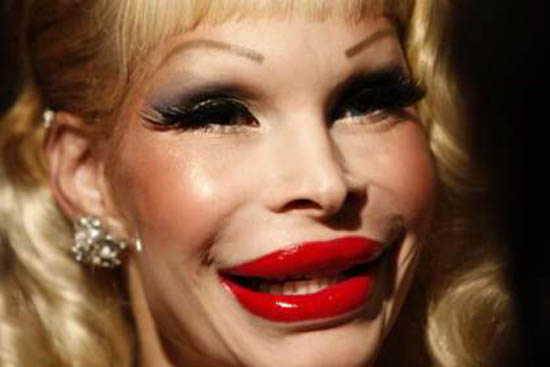 Amanda Lepore Worst Cases of Botox Ever Pictures Seen on www.VyperLook.com