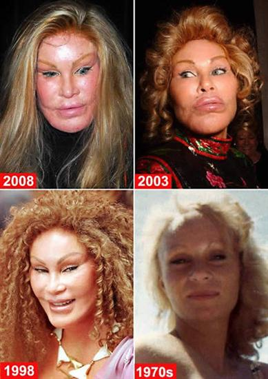 Jocelyn Wildenstein 1 Worst Cases of Botox Ever Pictures Seen on www.VyperLook.com