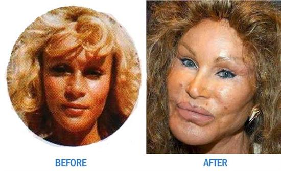 Jocelyn Wildenstein before after Worst Cases of Botox Ever Pictures Seen on www.VyperLook.com