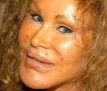 Jocelyn Wildenstein Worst Cases of Botox Ever Pictures Seen on www.VyperLook.com