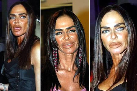 Michaela Romanini after Worst Cases of Botox Ever Pictures Seen on www.VyperLook.com