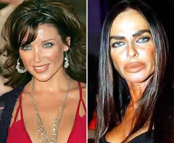 Michaela Romanini before after Worst Cases of Botox Ever Pictures Seen on www.VyperLook.com