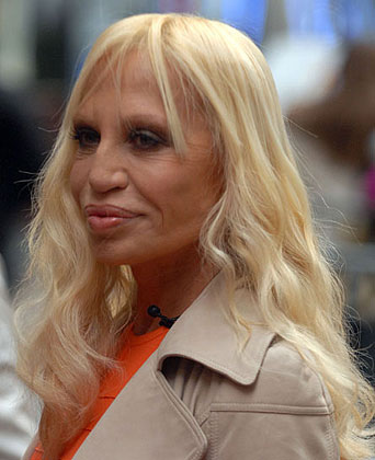 donatella versace after botox Worst Cases of Botox Ever Pictures Seen on www.VyperLook.com