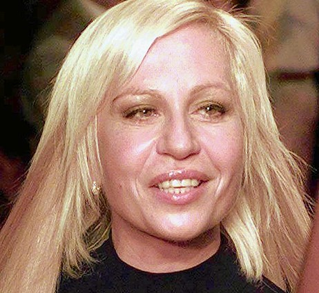 donatella versace good Worst Cases of Botox Ever Pictures Seen on www.VyperLook.com