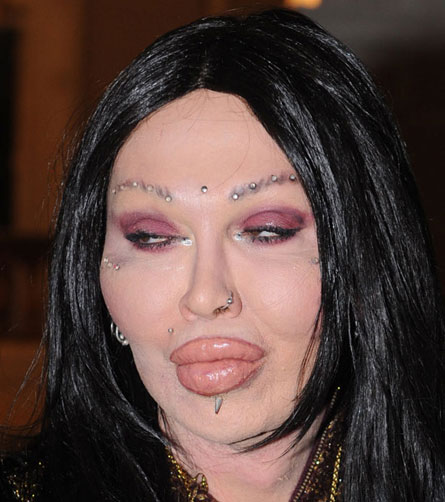 pete burns 1 Worst Cases of Botox Ever Pictures Seen on www.VyperLook.com